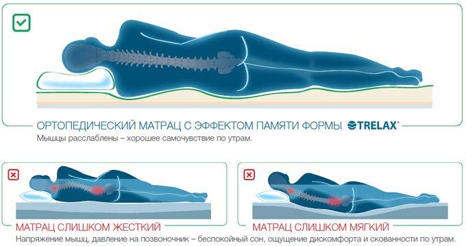 Ортопедический матрас с эффектом памяти